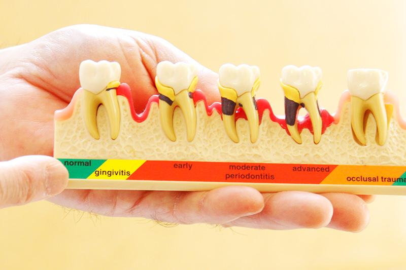 歯周病のメンテナンス治療